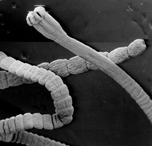 Стадии развития червя